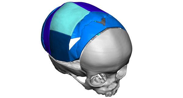 VSP cranial post op