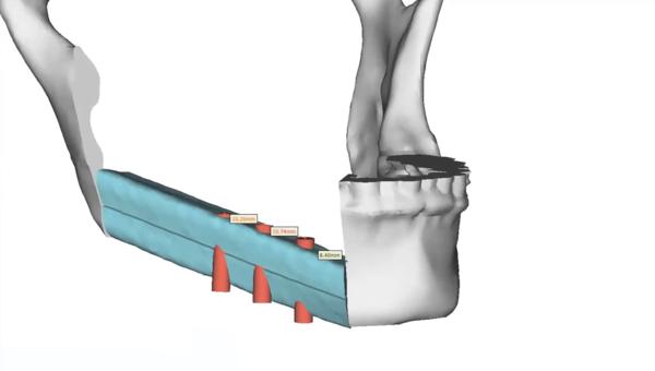 Mandibular Reconstruction VSP design thumb