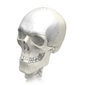 MEDPOR Cranial CI