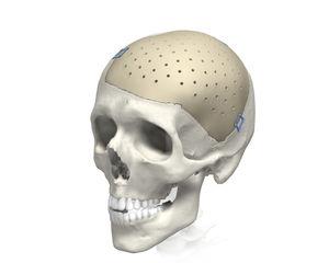 PEEK CI Cranial