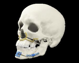 Tron orthognathic