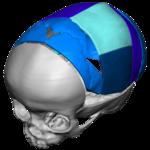 VSP cranial pic